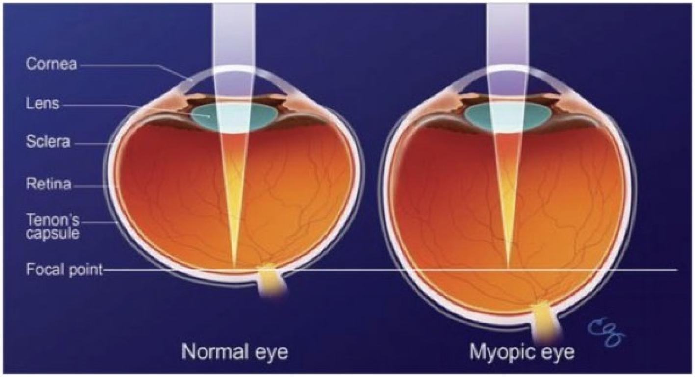 Лучшие клиники по офтальмологии в СПБ