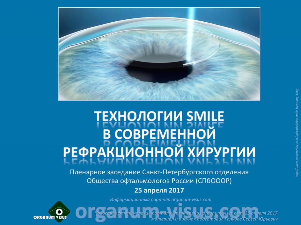 Глазная клиника в Санкт-Петербурге «Линкон». Офтальмология СПБ
