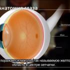Asked patients. AMD: macular degeneration. ВМД: ответы на вопросы пациентов. При поддержке компании Thea. Новости офтальмологии портала Орган зрения www.organum-visus.com (2)