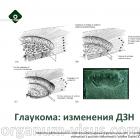 Glaucoma. Глаукомная оптическая нейропатия. Новости офтальмологии портала Орган зрения organum-visus.ru