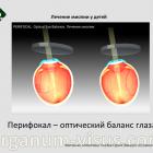 Treatment of myopia in children. Perifocal - оптическое равновесие и физиологический баланс близорукого глаза. Новости офтальмологии портала Орган зрения www.organum-visus.com