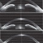 Anterior segment OCT showing the anterior chamber configuration of a patient with primary angle closure (A) who first underwent laser peripheral iridotomy (B), followed by phacoemulsification with intraocular lens implant (C).