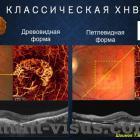 Шаимов Т.Б. Диагностика возрастной макулярной дегенерации с помощью ОКТ-ангиографии. Доклад на конференции Южно-Уральская офтальмологическая панорама-2015. Информационный партнер www.organum-visus.com (ВМД, AMD) (рис. 18)