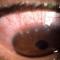 Chlamydial keratoconjunctivitis.