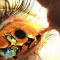 """Сухой глаз"", Dry Eye. Кунсткамера глаза Портала www.organum-visus.com"
