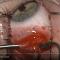 Eye surgery. Recession internal rectus. Хирург Хабибуллина Н.М., часть 2. Операции на глазу. Офтальмологический портал Орган зрения www.organum-visus.com