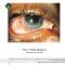 Кожухов А.А., Полунина Е.В. Патология глаз при хроническом вирусном гепатите С. Портал Орган зрения organum-visus.ru (рис. 2)