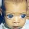 Врожденная глаукома (congenital glaucoma). Новости офтальмологии портала Орган зрения www.organum-visus.com