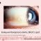 Бляшки Искерского-Бито. Bitots's spot. Dry Eye. Новости офтальмологии портала Орган зрения www.organum-visus.com