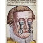 Офтальмология Георга Бартиша. Вуду. Strange Eyes.