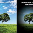 Как меняется зрение при глаукоме? Источник: effectivehealthcare.ahrq