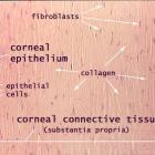 Cornea.
