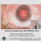Eye surgery. Факоэмульсификация незрелой катаракты с имплантацией ИОЛ SN60WF, Alcon. Офтальмохирург Новиков В.Б. Портал Орган зрения organum-visus.ru
