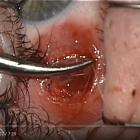 Eye surgery. Recession internal rectus. Хирург Хабибуллина Н.М., часть 3. Операции на глазу. Офтальмологический портал Орган зрения www.organum-visus.com