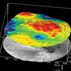 Diabetes and eyes. DME. Новости офтальмологии портала Орган зрения www.organum-visus.com