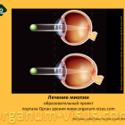 The educational project of myopia treatment of portal organum-visus.com! Лечение миопии у детей.