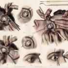 Strabismus surgery. Новости офтальмологии портала Орган зрения www.organum-visus.com