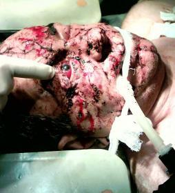 Сочетанное минно-взрывное ранение. Портал Орган зрения www.organum-visus.com
