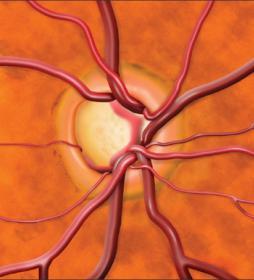 Диск зрительного нерва при глаукоме. life with glaucoma. Как жить с глаукомой? About eyes everywhere! www.organum-visus.com