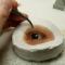 Глазное протезирование, eye Prosthetics.