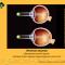 Myopia treatment. Лечение миопии у детей. Новости офтальмологии портала Орган зрения www.organum-visus.com