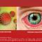 Red Eye. Хламидийная инфекция переднего отрезка глаза. Новости офтальмологии портала Орган зрения www.organum-visus.com
