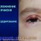 Ophthalmology for pediatricians. Заболевания глаз у детей: Болезн глазной поверхности. Круглый стол в рамках образовательного проекта портала Орган зрения organum-visus.com