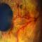 Rubeosis. Glaucoma.